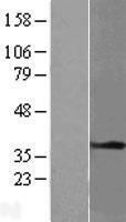 NBL1-17219 - Tropomyosin-1 Lysate