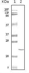 NB100-2203 - Cardiac Troponin I