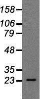 NBP1-48026 - Cardiac Troponin I