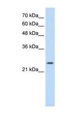 NBP1-56641 - Skeletal muscle Troponin I