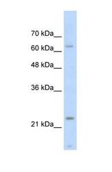 NBP1-56642 - Skeletal muscle Troponin I