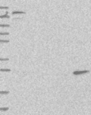 NBP1-90923 - Skeletal muscle Troponin I