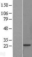 NBL1-17178 - Skeletal muscle Troponin I Lysate