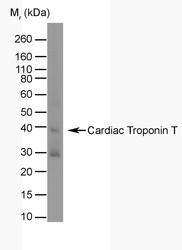 NB100-66490 - Cardiac Troponin T