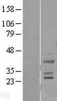 NBL1-17180 - Cardiac Troponin T Lysate