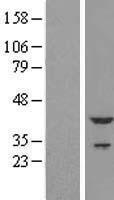 NBL1-17181 - Cardiac Troponin T Lysate