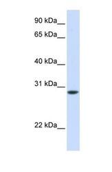 NBP1-56340 - Fast skeletal muscle Troponin T
