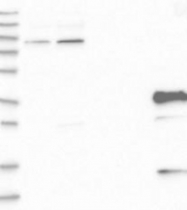 NBP1-92534 - Fast skeletal muscle Troponin T