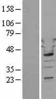 NBL1-17772 - Tryptophanyl tRNA synthetase Lysate