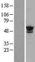 NBL1-17439 - Tubulin Beta 2C Lysate