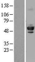 NBL1-17441 - Tubulin Beta 4 Lysate