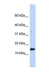 NBP1-56498 - Tumor protein D55 (TPD52L3)