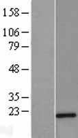 NBL1-17460 - Twist2 Lysate