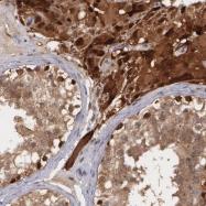NBP1-81791 - Thioredoxin reductase 1 / TXNRD1