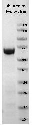 NBP1-42461 - Tyrosine 3-monooxygenase (TH)
