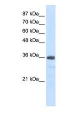 NBP1-57499 - U11/U12 snRNP 35 kDa protein
