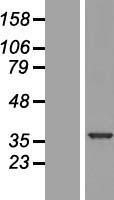 NBL1-17488 - U1SNRNPBP Lysate