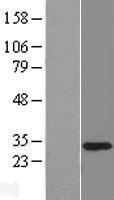 NBL1-17489 - U1SNRNPBP Lysate