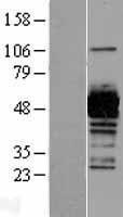 NBL1-17493 - UAP1 Lysate
