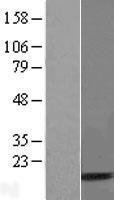 NBL1-17500 - UBA52 Lysate