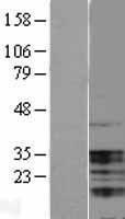 NBL1-17504 - UBAP1 Lysate