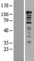 NBL1-17505 - UBAP2L Lysate