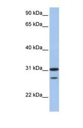 NBP1-58165 - UBE2C  / UBCH10