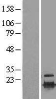 NBL1-17514 - UBE2C Lysate