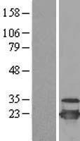 NBL1-17516 - UBE2C Lysate