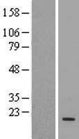 NBL1-17522 - UBE2D3 Lysate