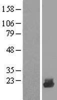 NBL1-17523 - UBE2D4 Lysate