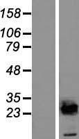 NBL1-17524 - UBE2E2 Lysate