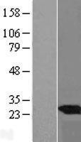 NBL1-17526 - UBE2E3 Lysate