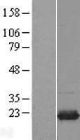 NBL1-17533 - UBE2I Lysate