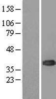 NBL1-17534 - UBE2J1 Lysate