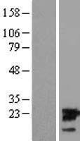 NBL1-17540 - UBE2M Lysate