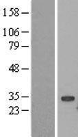 NBL1-17544 - UBE2S Lysate