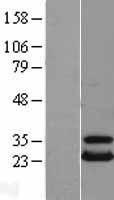 NBL1-17545 - UBE2T Lysate