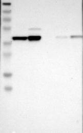 NBP1-82245 - UBE2Z