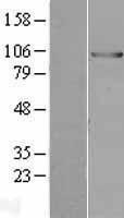 NBL1-17551 - UBE3A Lysate