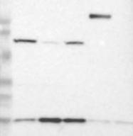 NBP1-84956 - UBL4A / GDX
