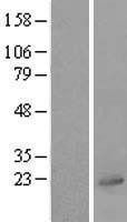 NBL1-17554 - UBL4A Lysate
