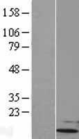 NBL1-17555 - UBL5 Lysate