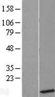 NBL1-17556 - UBL5 Lysate