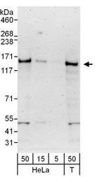 NBP1-49983 - Ubinuclein-1 (UBN1)