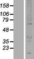 NBL1-17560 - UBOX5 Lysate