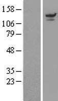 NBL1-17672 - UBPY/USP8 Lysate