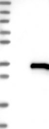 NBP1-82311 - UBTD1