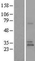 NBL1-17569 - UBTD1 Lysate