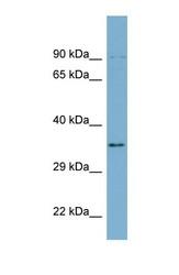 NBP1-56353 - UBXN1 / SAKS1